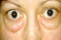 Thyroid Eye Disease.jpg